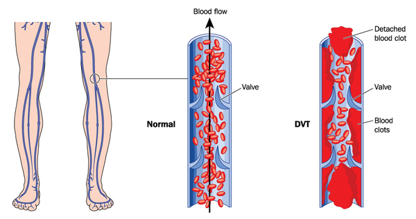 deep venous thrombosis dvt